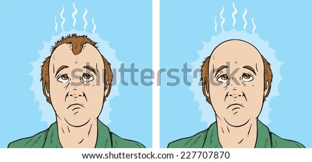 Hair loss cartoon - stock vector