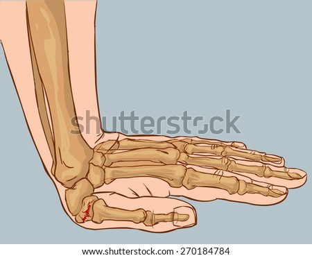 hand fracture - stock vector