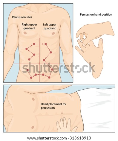 Hand position and placement for abdominal percussion exam, showing sites for percussion in the abdominal quadrants - stock vector