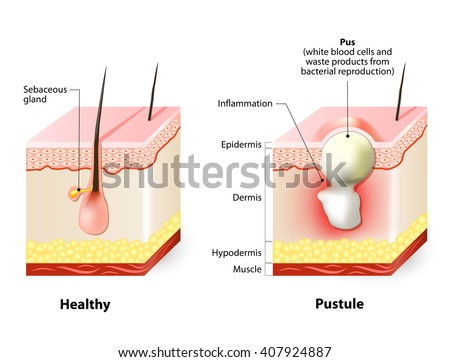 pustules stock images, royalty-free images & vectors | shutterstock, Skeleton