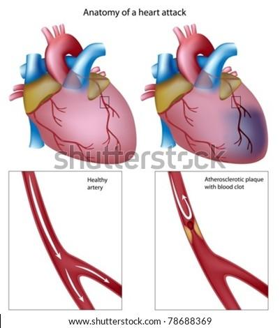Heart attack - stock vector