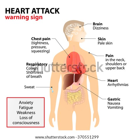 Heart attack signs symptoms human silhouette em vetor stock human silhouette with highlighted internal organs warning sign ccuart Choice Image