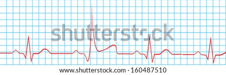 Heart Attack Stroke On Electrocardiogram Record - stock vector