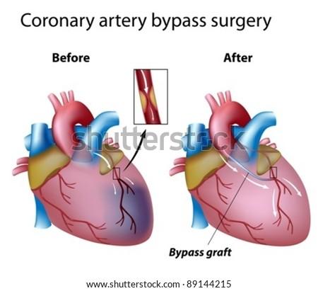 Heart bypass surgery - stock vector