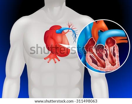 Heart Disease Diagram Detail Illustration Stock Vector 2018