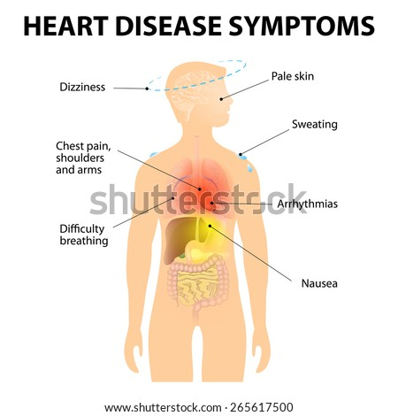 Heart Disease. Signs and Symptoms. Coronary artery disease, or ischemic heart disease. Also known as Atherosclerotic heart disease or atherosclerotic cardiovascular disease and coronary heart disease - stock vector