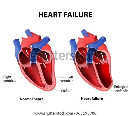 Heart failure or congestive heart failure - stock vector