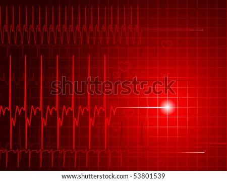 Как сделать что бы остановилось сердце 438