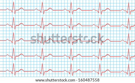 Heart Normal Sinus Rhythm On Electrocardiogram Record - stock vector