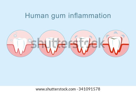 how to help gum inflammation