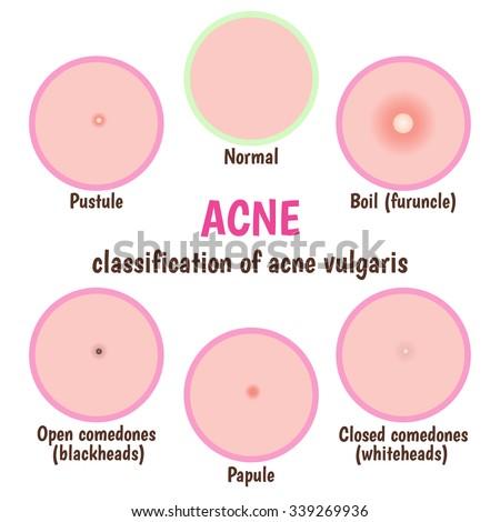 Icon Acne Schematic View Skin Care Stock Vector 339269936 - Shutterstock