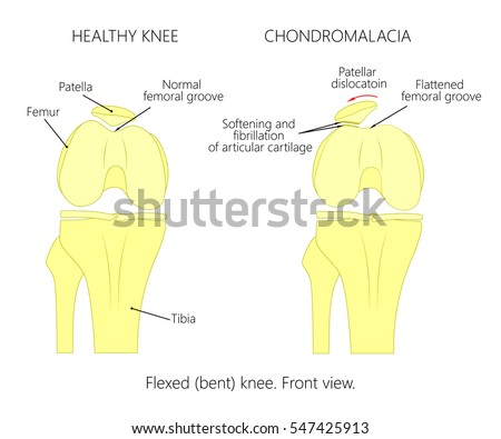 Illustration diagram normal knee joint knee stock vector 547425913 illustration diagram of normal knee joint and a knee with chondromalacia patella flexed ccuart Image collections