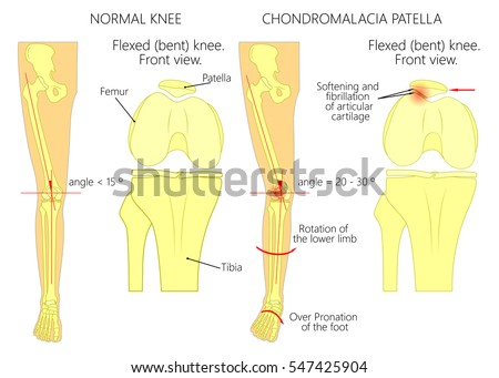 Patella Stock Images, Royalty-Free Images & Vectors | Shutterstock