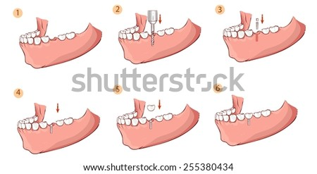 Illustration of a dental implant - stock vector