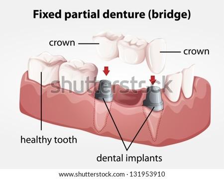 Illustration of a Fixed partial denture bridge - stock vector