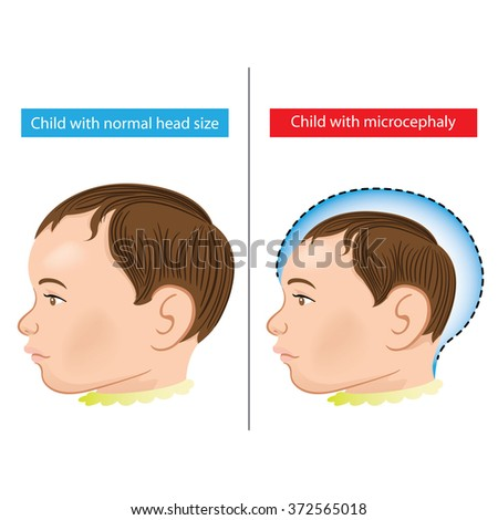 Illustration of a newborn baby with Microcephaly disease caused by Zika virus. Ideal for informational and institutional related sanitation and medicine - stock vector