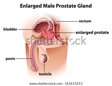 Illustration of an enlarged male prostate gland on a white background