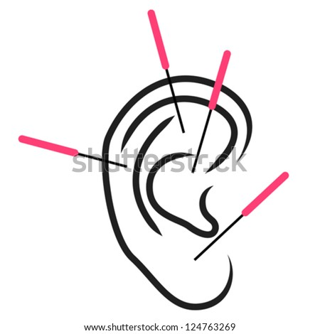 Illustration of ear acupuncture