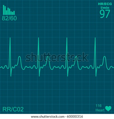 Illustration of electrical activity of the human heart - stock vector
