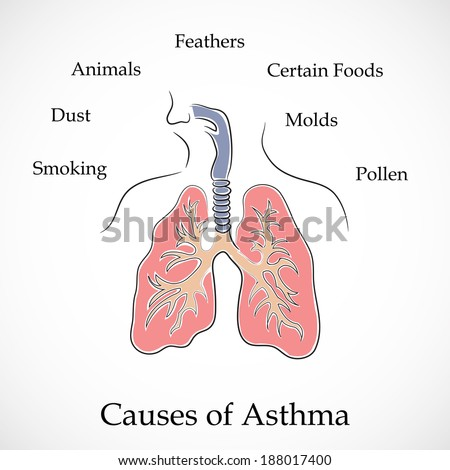 Asthma pathology stock vector. Illustration of white ... |Human Lungs With Asthma