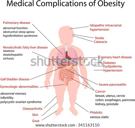 Illustration of Medical Complication of Obesity - stock vector