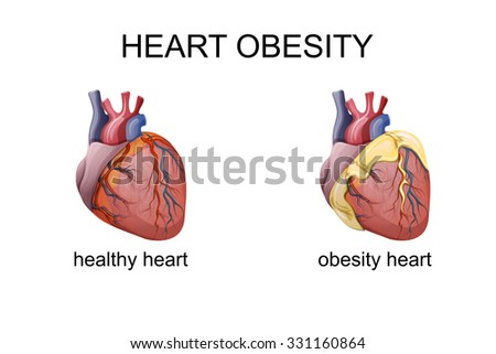 illustration of obesity heart. comparison - stock vector