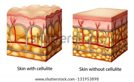 Illustration of skin cross section showing cellulite - stock vector