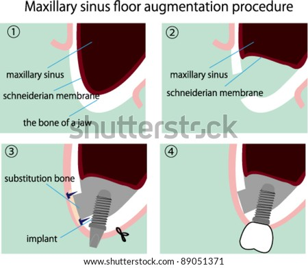 Maxillary sinus stock photos images pictures for Floor of the maxillary sinus