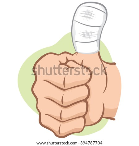 Illustration representing hand of a person with bandaged thumb, caucasian. Ideal for informational and institutional material - stock vector