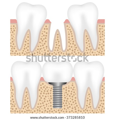 Illustration showing the dental implant with crown