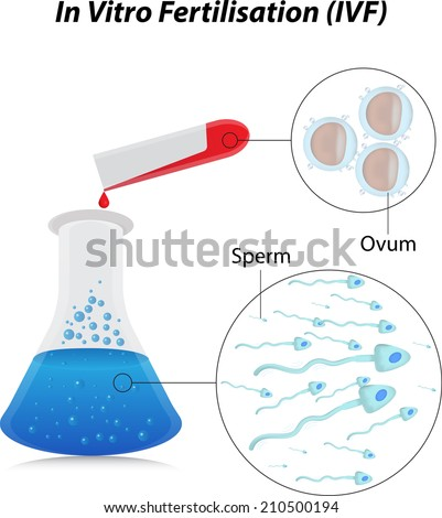 In vitro sperm donors
