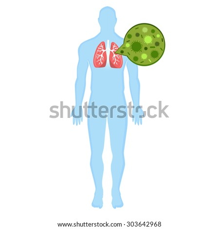 infection in the lungs illustration. blue human silhouette, human bronchi on a white background. Modern Medical vector infographics. bronchi disease, pneumonia, common cold, infection in the bronchi.