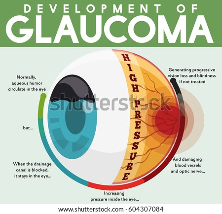 glaucoma stock images, royalty-free images & vectors | shutterstock, Skeleton
