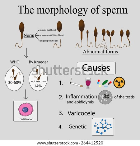 Infographics sperm morphology. Sperm morphology norms. Causes of poor morphology. - stock vector