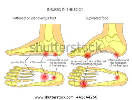 Injuries Foot Plantar Fasciitis Heel Spur Stock Vector 2018