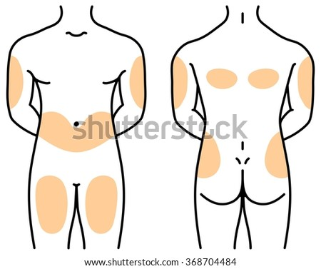 Insulin injection sites - stock vector