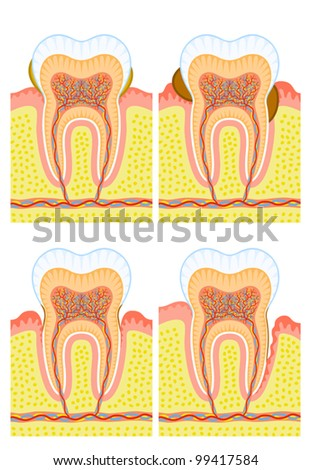 Internal structure of tooth: dental deposit, dental calculus, decay - stock vector