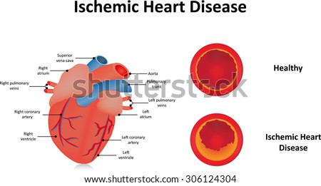 Ischemic Heart Disease - stock vector