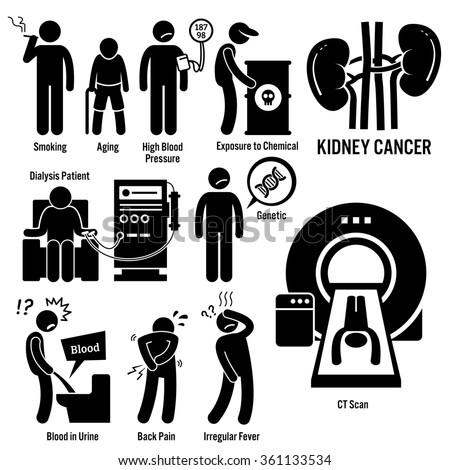 Kidney Cancer Symptoms Causes Risk Factors Diagnosis Stick Figure Pictogram Icons - stock vector