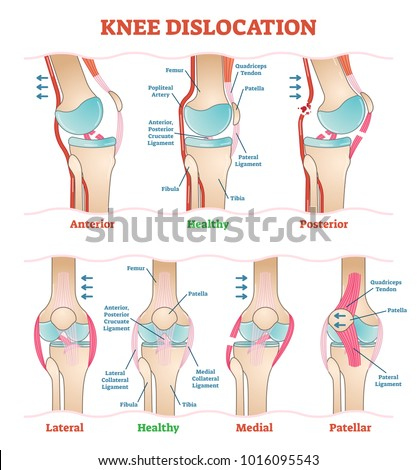 Knee dislocations medical vector illustration diagrams stock vector knee dislocations medical vector illustration diagrams anatomical knee injury types scheme physiotherapy educational ccuart Gallery