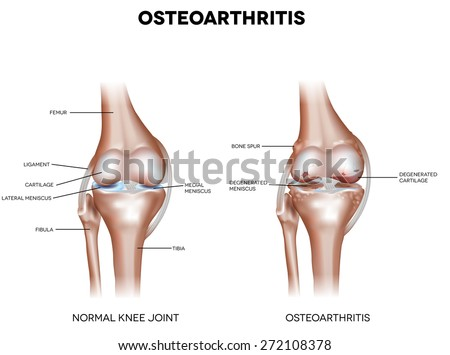 Knee Osteoarthritis and normal joint detailed anatomy - stock vector