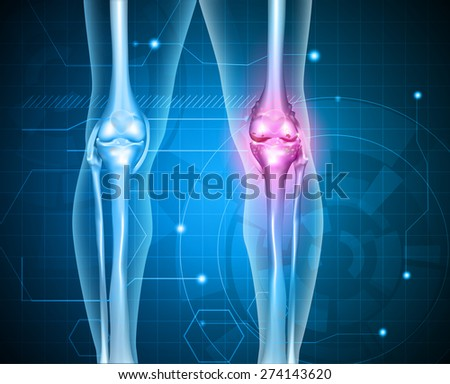 Knee pain abstract background. Healthy joint and unhealthy painful joint with osteoarthritis.  - stock vector