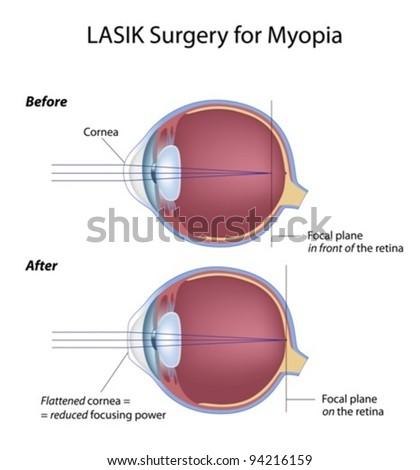 Lasik eye surgery for myopia - stock vector