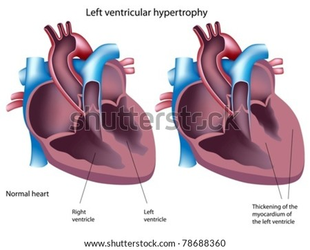Left ventricular hypertrophy - stock vector