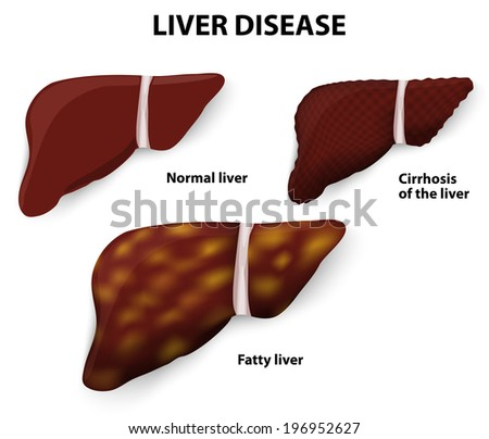 how to get rid of fatty liver cells