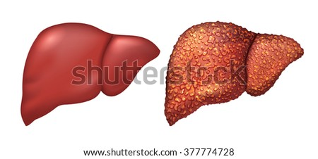 Liver of healthy person. Liver patients with hepatitis. Liver is sick person. Cirrhosis of liver. Repercussion alcoholism. Isolated on white vector illustration - stock vector