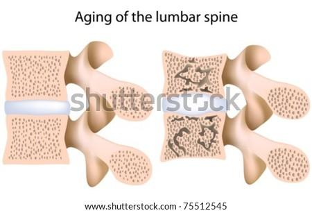 Lumbar spine osteoporosis - stock vector