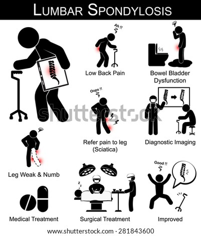 Lumbar Spondylosis symptoms pictogram ( Low back pain , refer pain to leg , leg numbness and weakness , Bowel bladder dysfunction ) and Medical , Surgical treatment - stock vector
