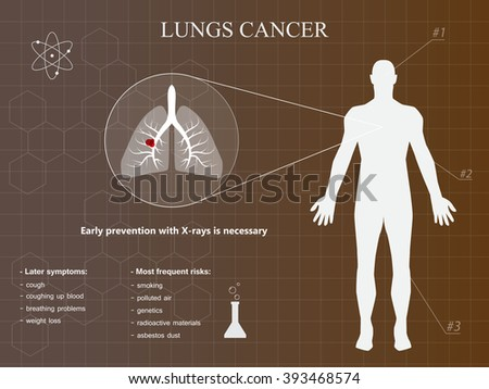 the clinical background information of lung cancer Clinical trials lung cancer information what is it incidence lung cancer is the second most common non-skin cancer among american men and women.