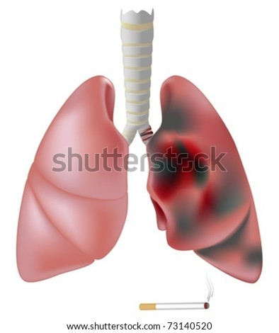 Lung half healthy and half diseased with cancer - stock vector
